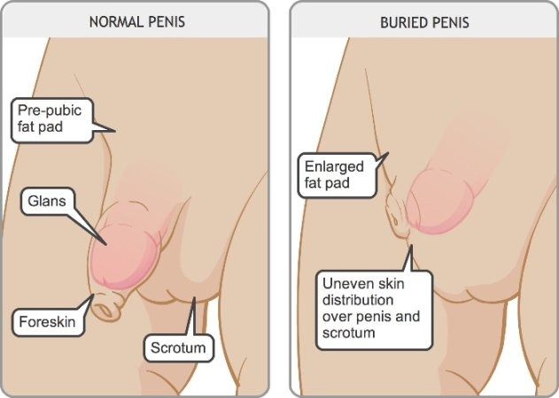 What causes penis shrinkage
